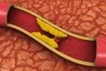 Kolesterolü düşüren altı gıda!..