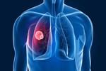 Akciğer kanserinde yeni tedavi umudu