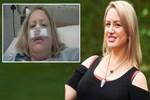 Hapşıran kadının burnu elinde kaldı!..