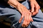 Parkinson son değildir!