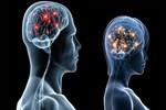 Beyin felcinde genetik etki!..