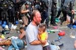 Polis müdahalesi göçmen çocuğu kör etti
