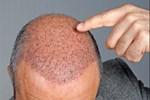 Saç ekiminde tuzaklara dikkat!..
