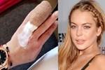 Lindsay Lohan'ın yüzük parmağı koptu!