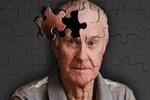 Alzheimer tarihe karışmak üzere
