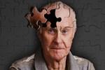 Alzheimer'a kanser tedavisi!