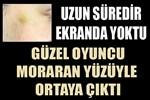 Nur Fettahoğlu'nun yüzüne ne oldu?
