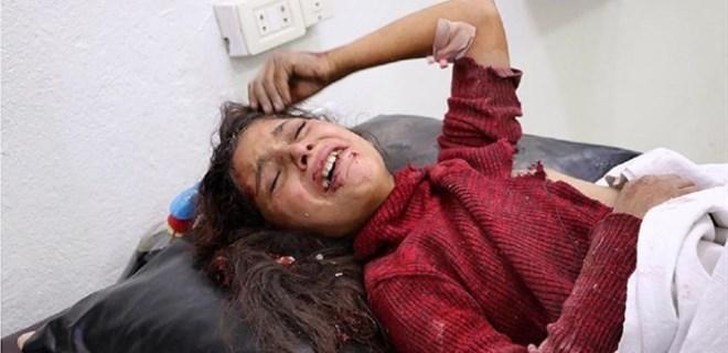 Esed rejimi sivilleri hedef almaya devam ediyor!