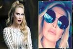 Sosyal medya Işıl Reçber'in dudağını konuştu
