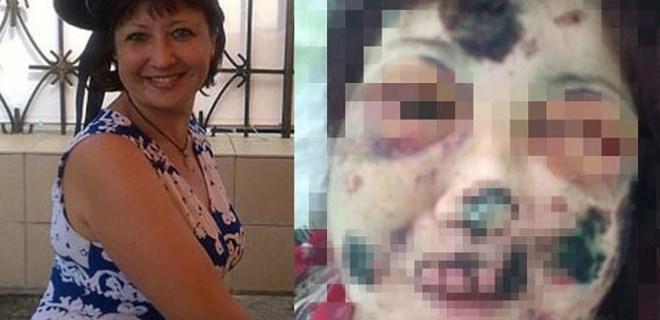 Genç kadına insanlık dışı şiddet!..