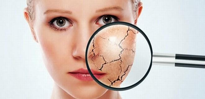 Kış aylarında cildi korumak için ne yapmalı?
