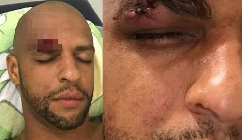 Felipe Melo yürekleri ağza getirdi