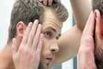 Erkeklerde saç dökülmesine dikkat!