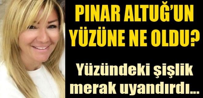 Pınar Altuğ'un yüzü neden şişti?