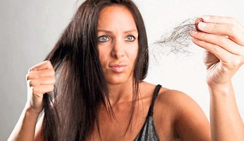 Yakınlarınızın saçı dökülüyorsa dikkat!