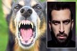 Başıboş köpekler Erdem Yener'e saldırdı!