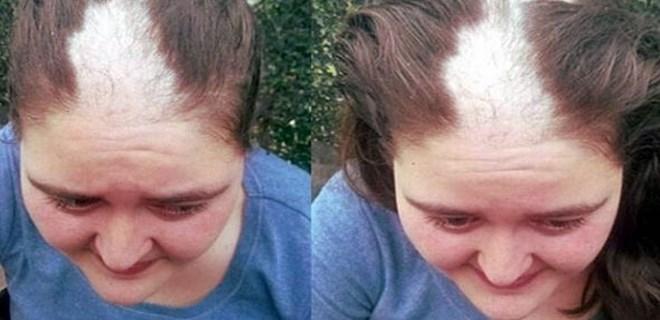 Saçları kökünden koparılan Bergül Varan için suç duyurusu