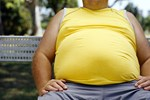 Zayıflayan obezlerin