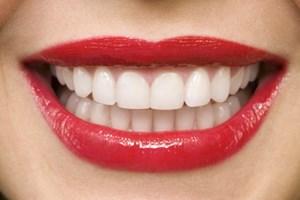 Diş beyazlatmak için bitkisel çözümler