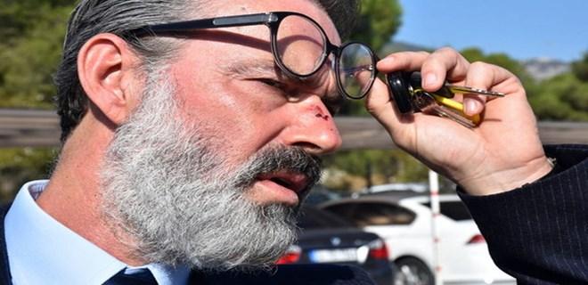 Murat Başoğlu Amerika'da yeni bir hayat kurmak istiyor