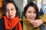 Sosyal medya Nurgül Yeşilçay'ın botoksunu konuşuyor