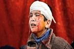 Esed rejimi Doğu Guta'da katliama devam ediyor!
