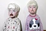 Mardinli albino kardeşler yardım bekliyor