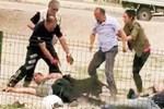 Uyuşturucu baskınında pitbul polisin kolunu ısırdı