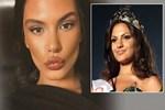 Almeda Abazi 'estetikli güzel' yorumlarına tepki gösterdi
