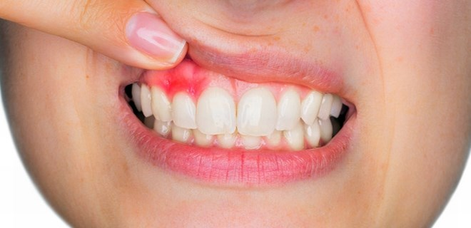 Sigara ağız sağlığına zarar veriyor