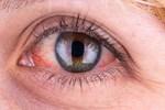 Havuzlarda oluşabilecek göz hastalıklarına dikkat!