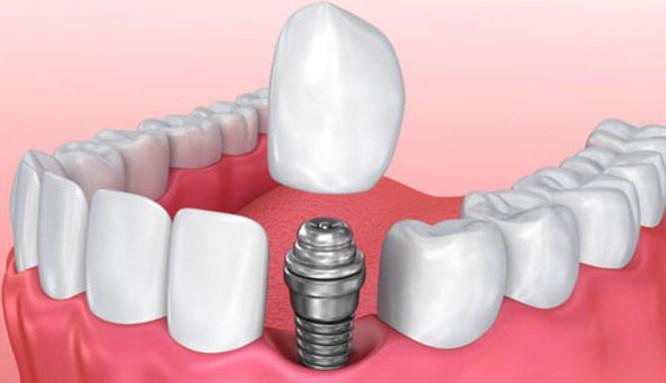 İmplant yapımı sonrası diş bakımına dikkat!