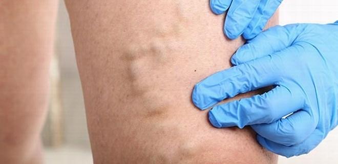 Varislerden ameliyatsız kurtulmak mümkün