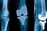 Diz protez cerrahisi ile ağrılardan kurtulmak mümkün