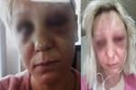 Talihsiz kadın jandarmaya sığındı