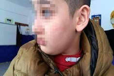 Otizmli çocuğa öğretmeninden şiddet iddiası