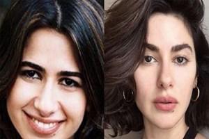 Nesrin Cavadzade'den 'estetikli' iddiasına yanıt!