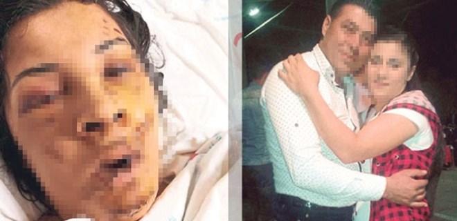 Boşandığı eşi tarafından öldüresiye dövüldü!