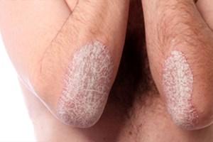 Sedef hastalığı sadece cildimizi etkileyen bir hastalık mı?