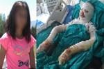 Liseli kız bitlerinden kurtulmak isterken kendini yaktı!